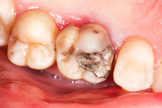 old amalgam restoration and molar caries