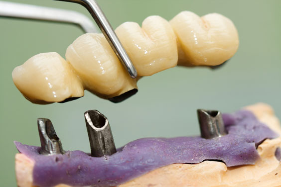 placing a dental implant head and bridge